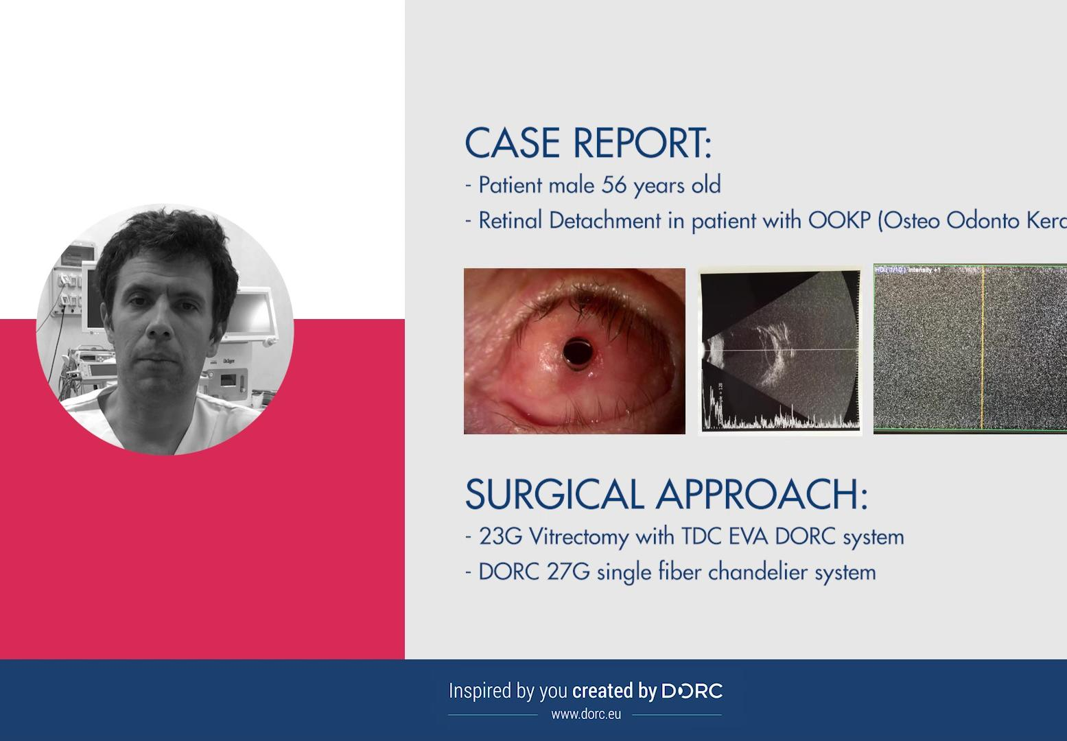 EVA case report nr.2 by Dr Paolo Rossini, Italy