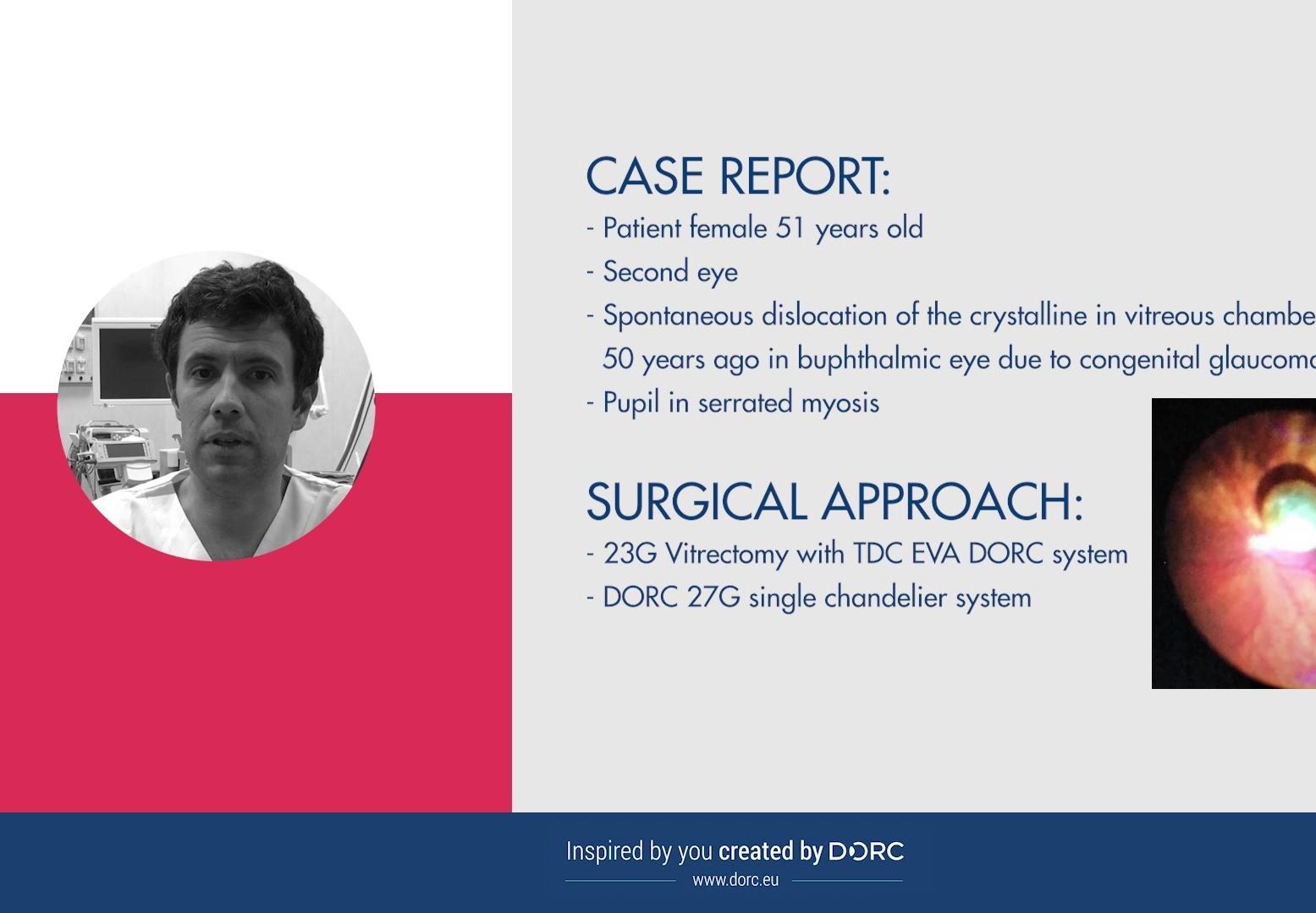 EVA case report nr.1 by Dr Paolo Rossini, Italy